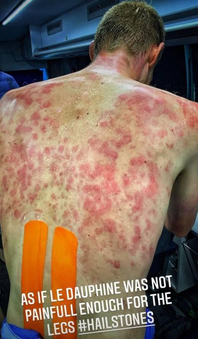 Der Rücken von Tim DeClercq ist gezeichnet vom Hagelschauer der Dauphine