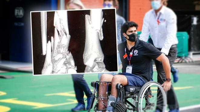 Juan Manuel Correa veröffentlichte jetzt seine Röntgenbilder