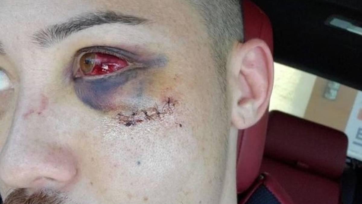 Boston Salmon zeigte auf Instagram Bilder seiner Horrorverletzung