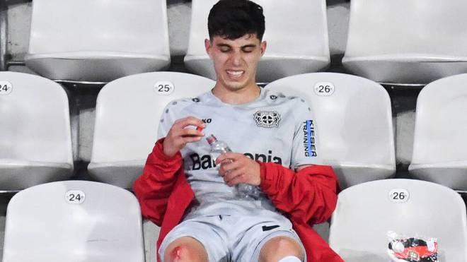 Nach seiner Auswechselung saß Havertz mit blutendem Knie auf der Tribüne