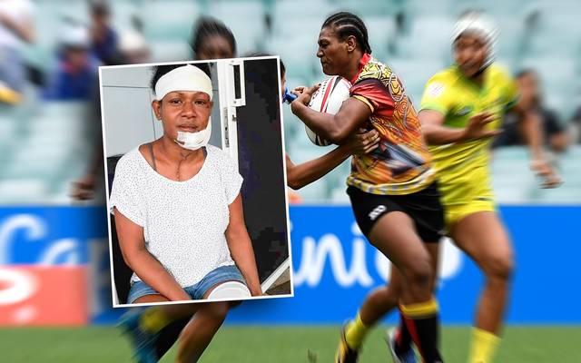 Debbie Kaore tritt für ihr Land im Boxen und Rugby an