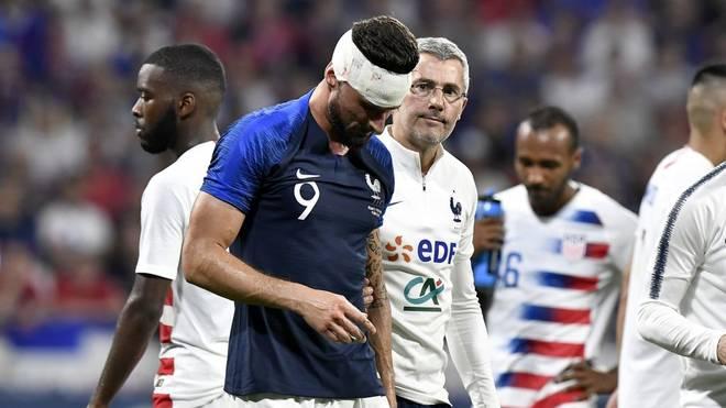 Kopfverletzungen im Fußball könnten zu einer zusätzlichen Auswechslung führen