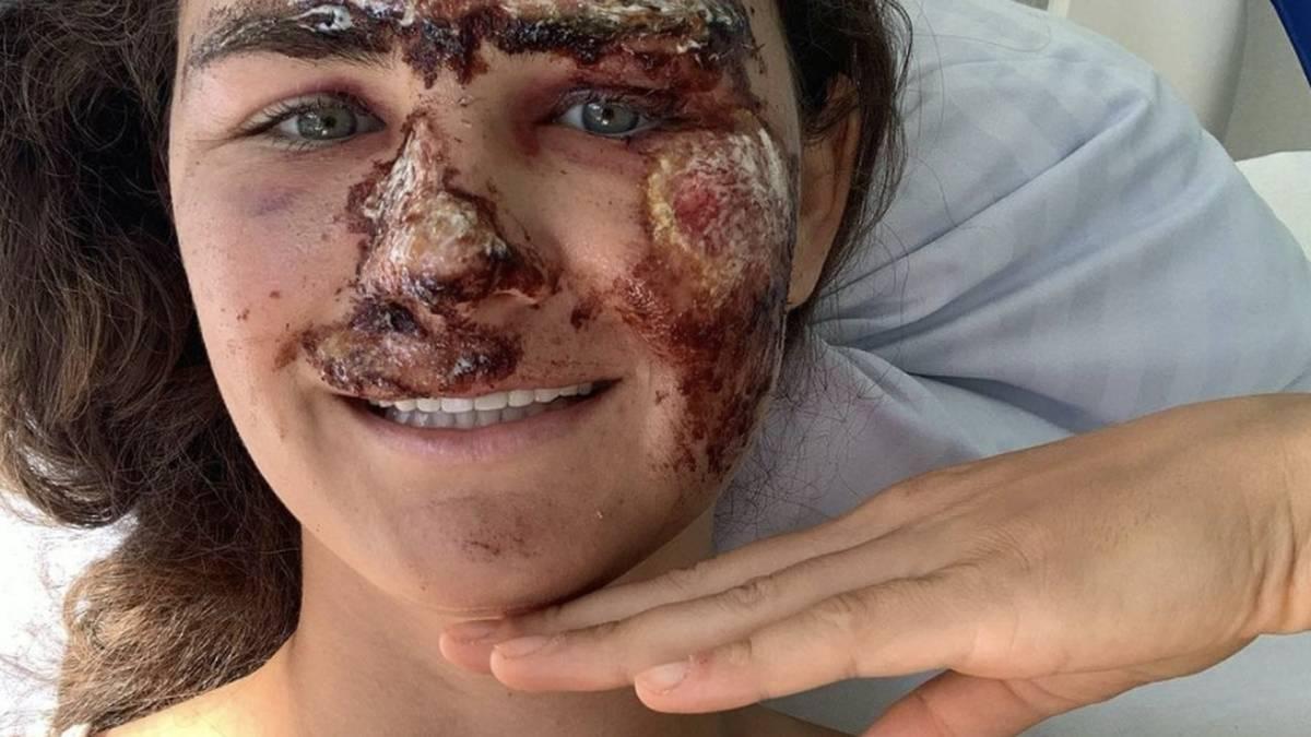 Alice Merryweather nach ihrem schweren Trainingsunfall