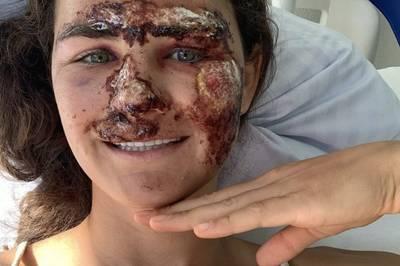 Alice Merryweather verletzt sich bei einem Trainingsunfall  schwer. Die Bilder, die sie selbst postet, sind nichts für schwache Nerven.