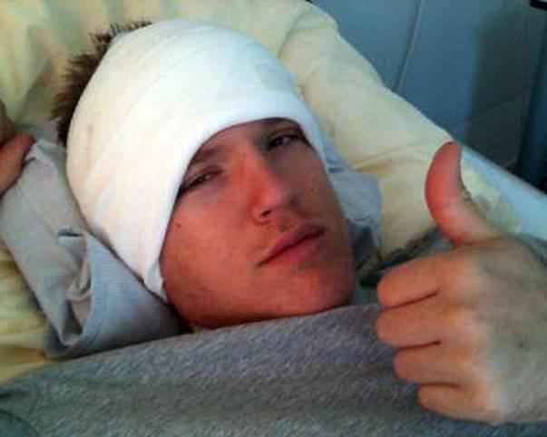 """Daumen hoch! Das Schicksal des Tübinger Profis und Nationalspielers Johannes Lischka, dem ein Tumor im Kopf entfernt wird, hat zuletzt ganz Basketball-Deutschland beschäftigt. Doch noch vom Krankenbett aus, postet Lischka ein Foto und denkt schon wieder an die Zukunft. """"OP sehr gut überstanden. Jetzt eine Woche zu Hause erholen und dann kann ich hoffentlich mit der Reha beginnen.""""  (Copyright: facebook@johannes.lischka)"""