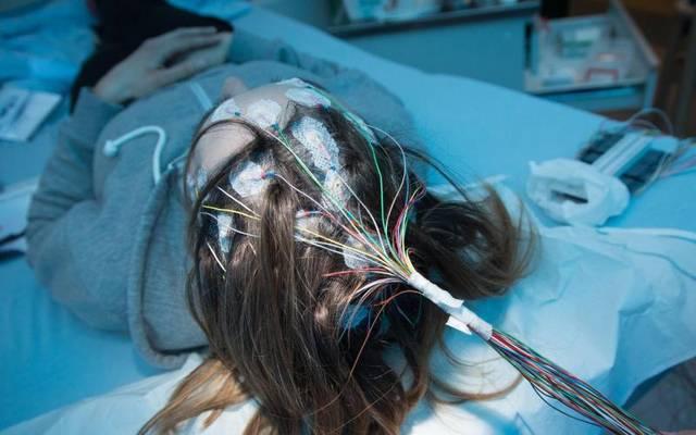 Ein epileptischer Anfall kann beispielsweise auch durch Blutzuckerschwankungen oder extremen Schlafmangel ausgelöst werden