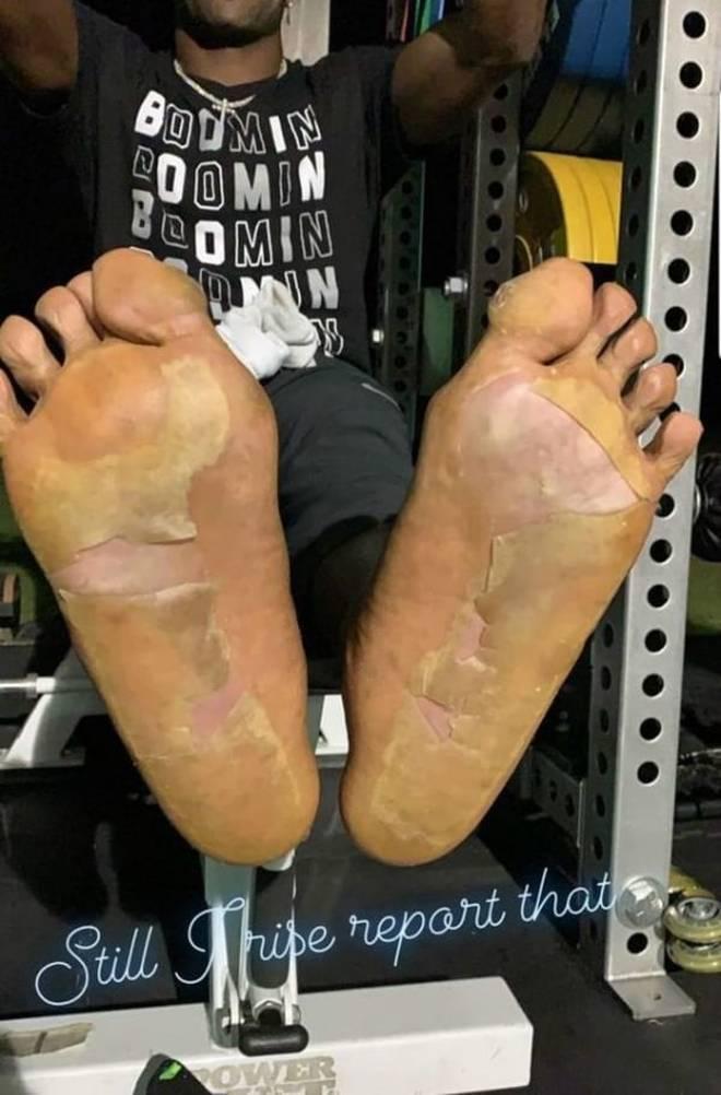 So sahen die Füße von Antonio Brown nach dem Kryo-Fail aus