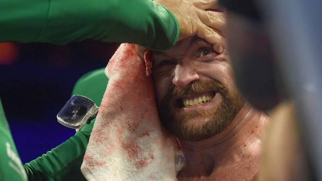 Tyson Fury besiegte Otto Wallin nach Punkten