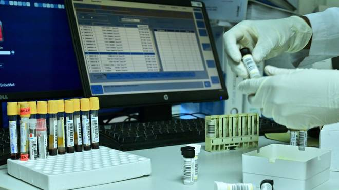 A lab-technician analyses biological samples at Lancet laboratories, the only World Anti Doping Agency (WADA) accredited facility for eastern Africa, in the Kenyan capital of Nairobi on June 7, 2019. - Between 2004 and August 2018, 138 Kenyan athletes tested positive, according to a report by the World Anti-Doping Agency (WADA) and thirty-four kenyan athletes are currently suspended, under Anti-Doping Agency of Kenya (ADAK)and/or Athletes International Federation rules for testing positive for performance enhancing drugs. (Photo by TONY KARUMBA / AFP)        (Photo credit should read TONY KARUMBA/AFP via Getty Images)