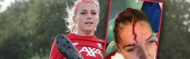 Fußball / Frauen