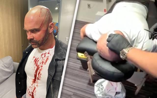 Dax Harwood bekam bei AEW Dynamite eine heftig blutende Wunde ab