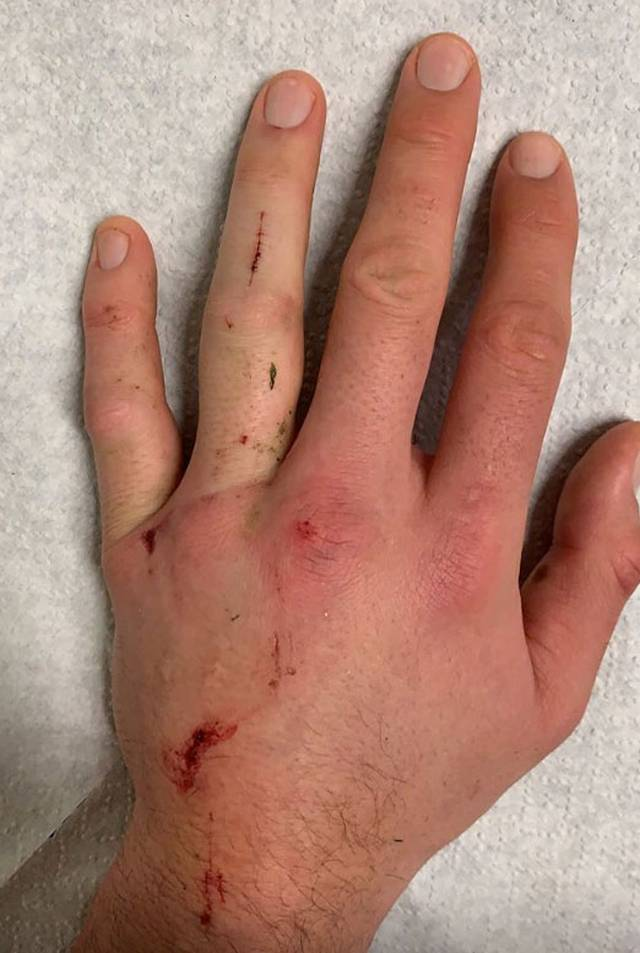 Mats Hummels verletzte sich im Spiel bei der TSG Hoffenheim an der Hand
