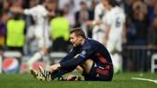 Manuel Neuer vom FC Bayern brach sich gegen Real Madrid den Mittelfuß