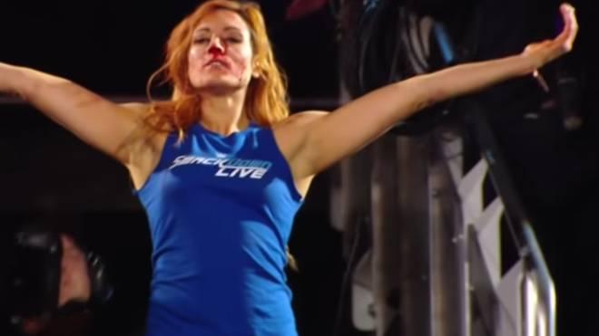 Becky Lynch zog sich bei WWE Monday Night RAW eine schwere Kopfverletzung zu