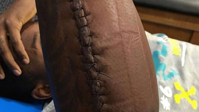 Thomas Davis ließ sich auch von einem gebrochenen Arm nicht stoppen