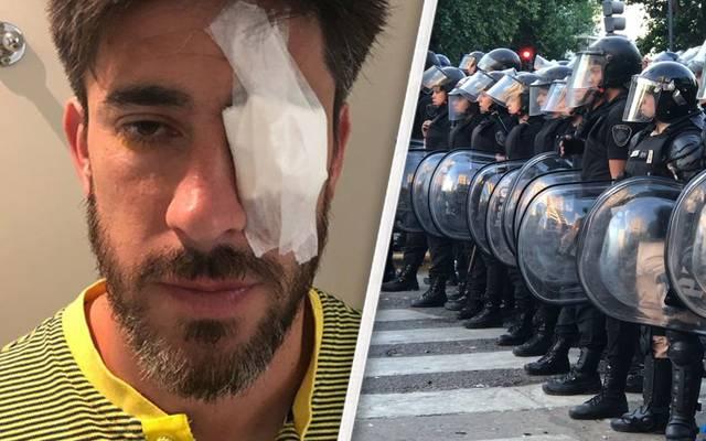 Bei den Krawallen vor dem Finale der Copa Libertadores wurden auch Spieler verletzt