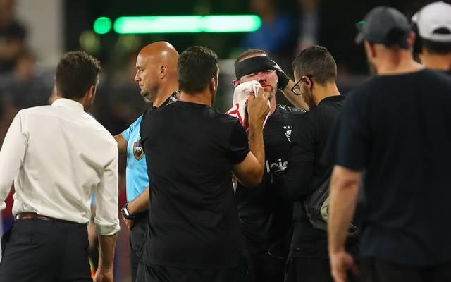 Wayne Rooney bracht sich im Spiel gegen Colorado die Nase und musste genäht werden