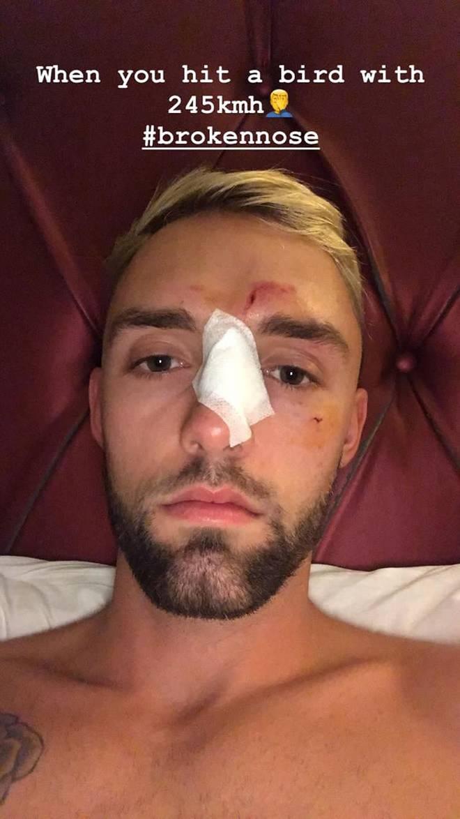 Jonas Folger bricht sich im Training die Nase