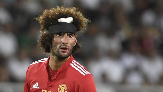 Marouane Fellaini von Manchester United zog sich gegen Real Madrid eine Kopfverletzung zu