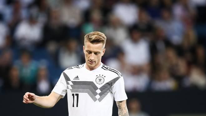 Hinter dem Einsatz von Marco Reus gegen die Niederlande steht noch ein Fragezeichen