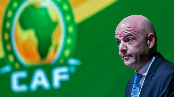 FIFA-Präsident Gianni Infantino sieht sich bei der WM-Vergabe 2026 mit schweren Vorwürfen konfrontiert